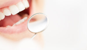 Preferred Dental Blue Springs Dentistry Blue Springs
