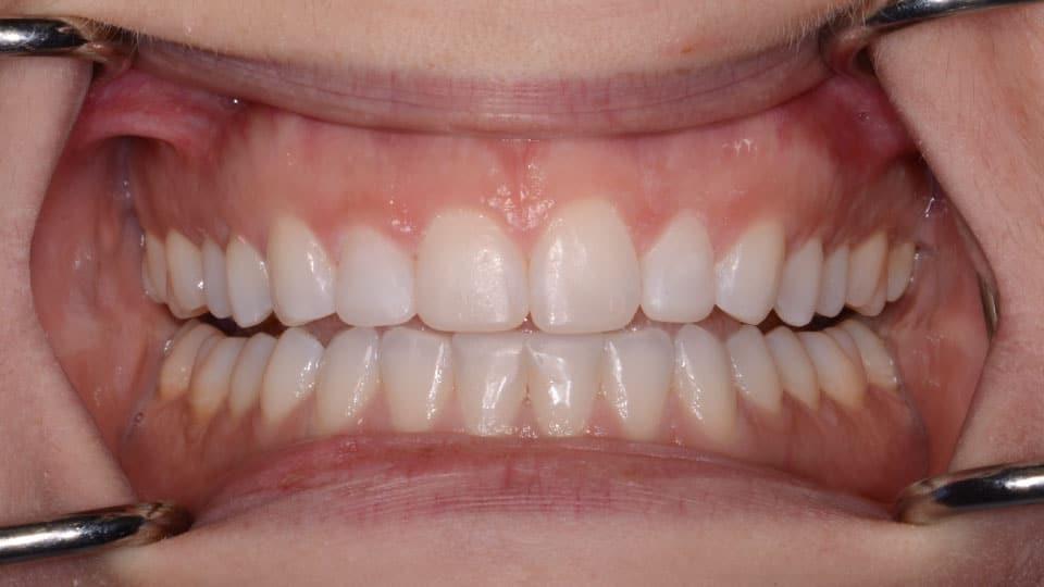 Invisalign Bonding After Image - Preferred Dental