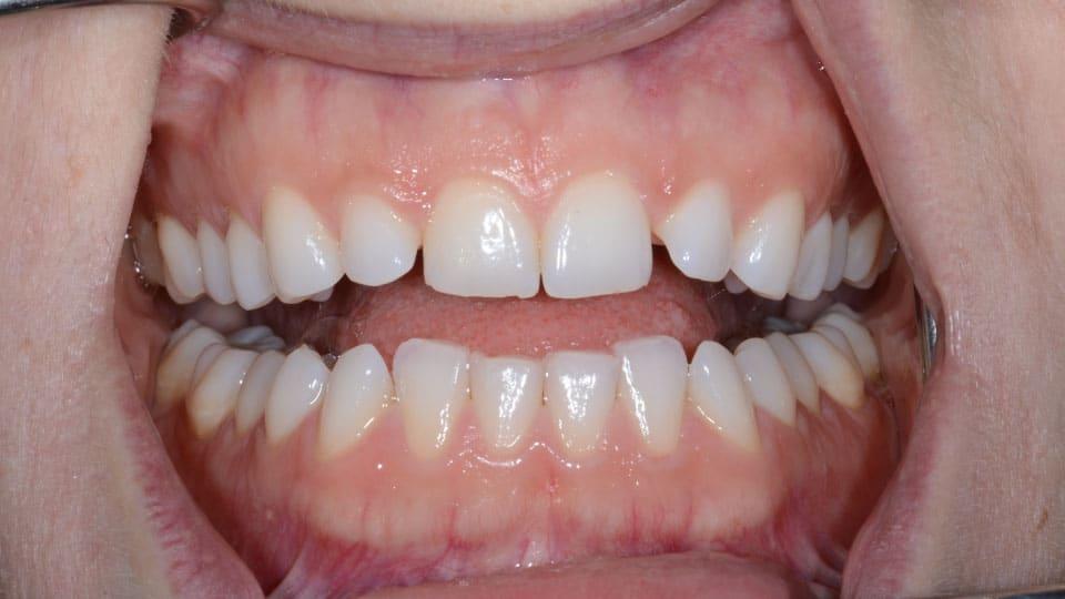Invisalign Bonding Before Image - Preferred Dental