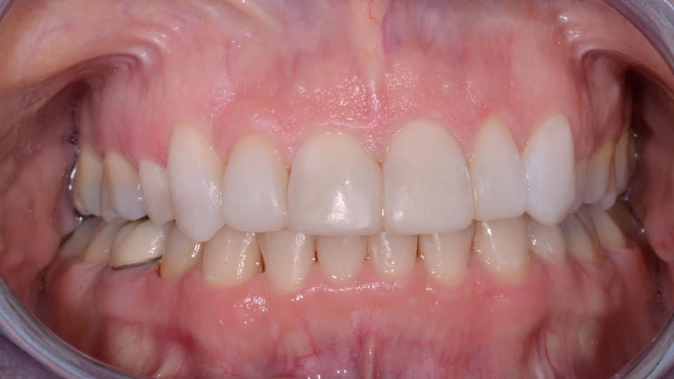 Orthodontics Bonding After Image - Preferred Dental