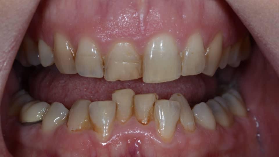 Orthodontics Bonding Before Image - Preferred Dental