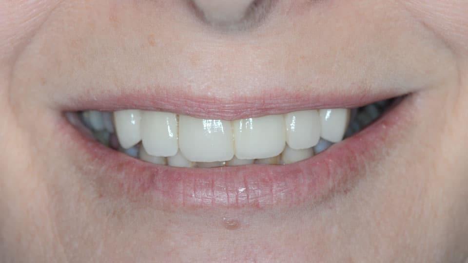 Porcelain Bridge After Image 02 - Preferred Dental