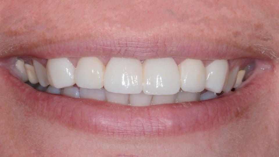 Porcelain Bridge After Image - Preferred Dental