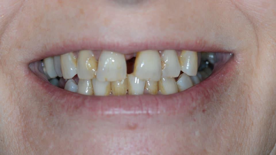 Porcelain Bridge Before Image 02 - Preferred Dental