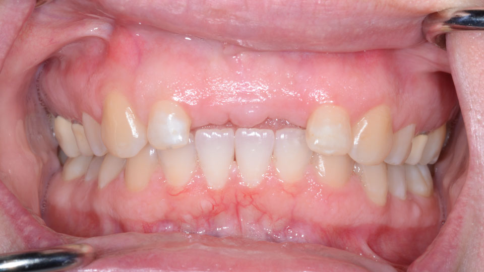 Porcelain Bridge Before Image - Preferred Dental