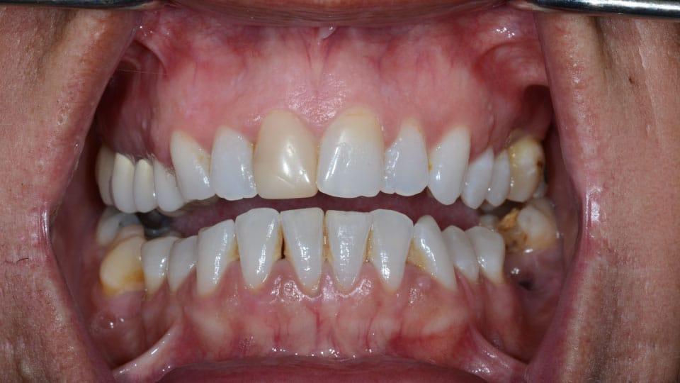 Veneers Before Image 1 - Preferred Dental
