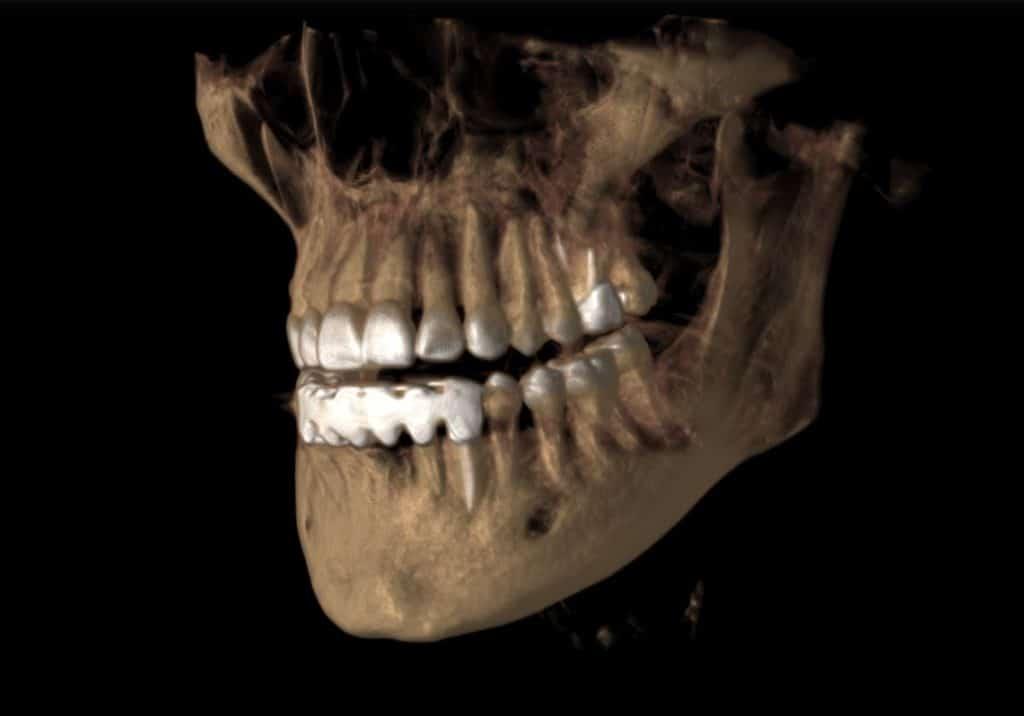 3D Image - Preferred Dental