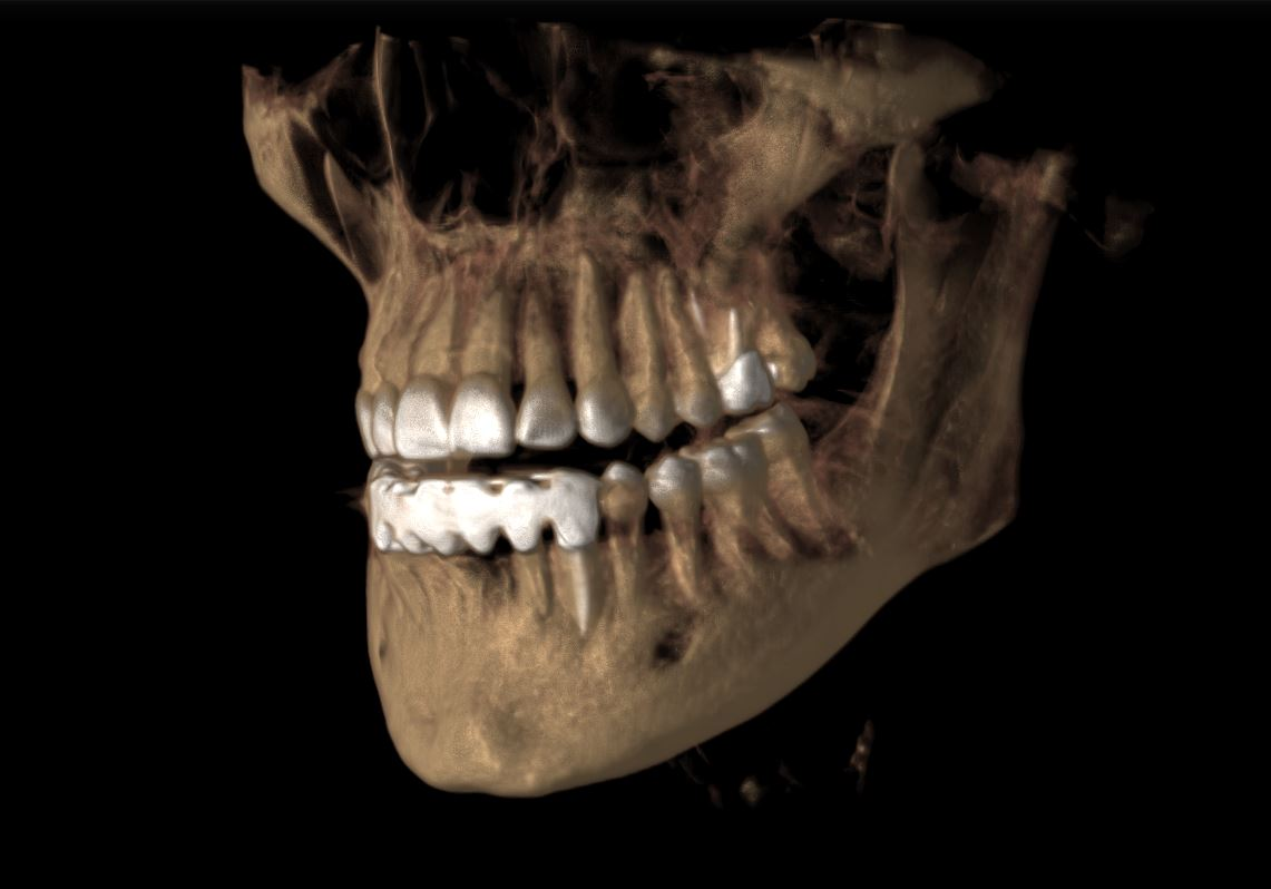 3D Image - Preferred Dental
