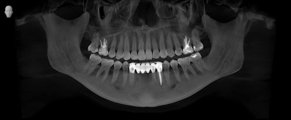 3D Panorama Image - Preferred Dental