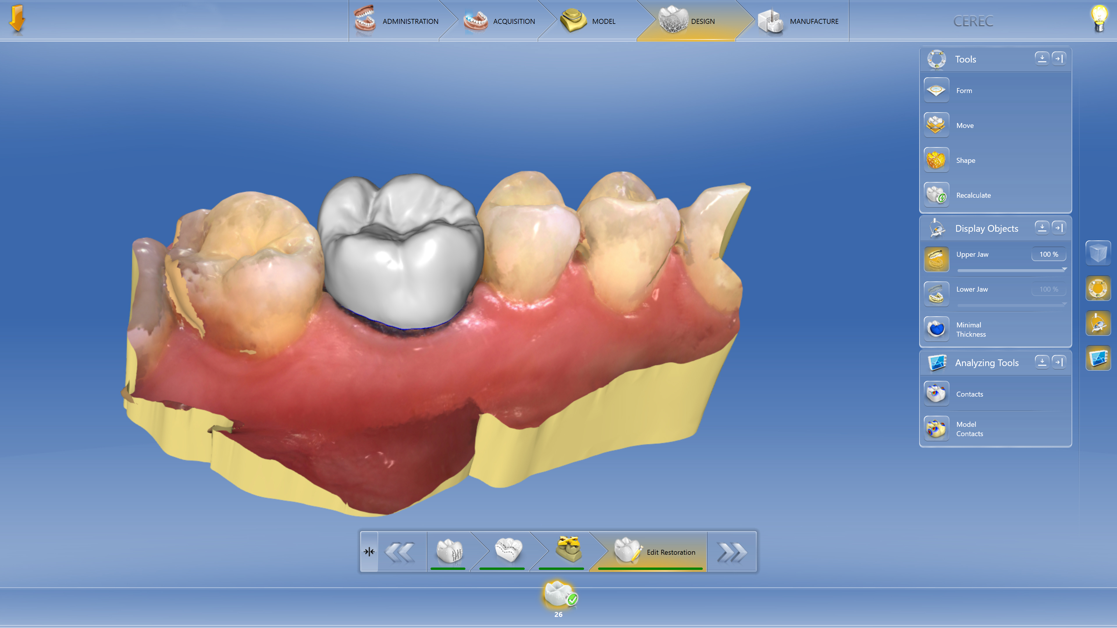 CEREC® One-Visit Dentistry Image - Preferred Dental